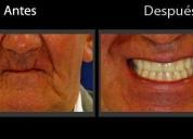 Oportunidad! protesis dental completa, rosario