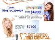 Biodental, implantes dentales y ortodoncia, la plata