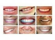 Estetica dental en mendoza,contactarse.
