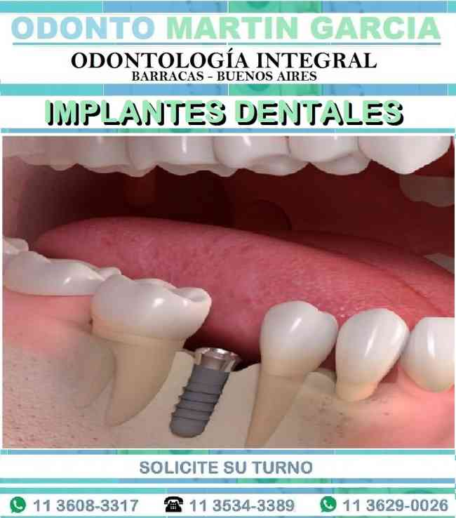 Implantes Dentales Optima Oseointegración Titanio