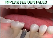 Implantes dentales optima oseointegración titanio