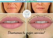 Botox - Ácido hialurÓnico - estÉtica orofacial