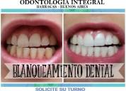 Blanqueamiento dental eficaz // consulta