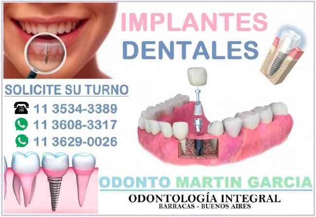 Implantes Dentales Titanio Oseointegración Optima