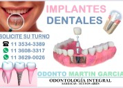 Implantes dentales titanio oseointegración optima