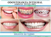 Ortodoncia brackets cerámicos invisalign estéticos