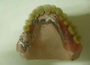 Cromos cobalto protesis dental , paternal dentista